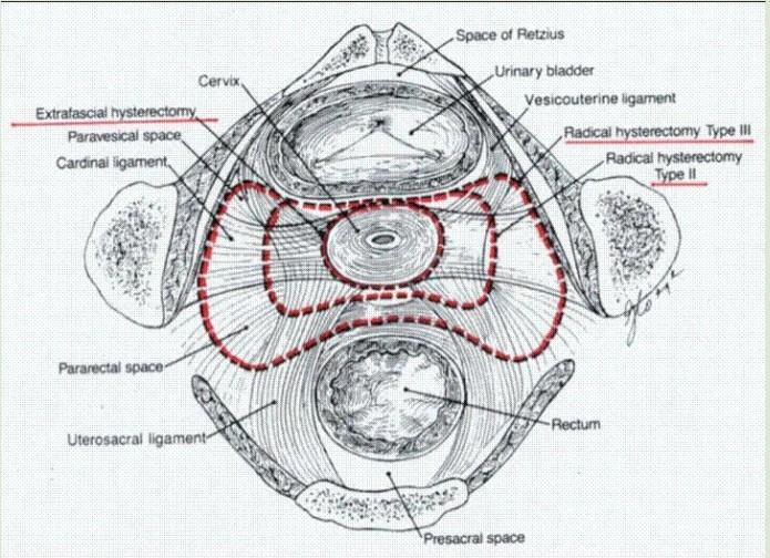 广泛子宫切除术和腹膜后淋巴结切除术