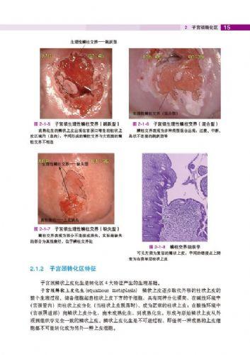 中国学术在线会议_子宫颈转化区(1)--《子宫颈疾病——阴道镜图释》
